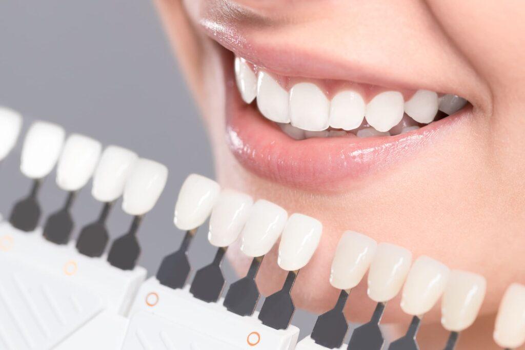 Que són les Carilles dentals
