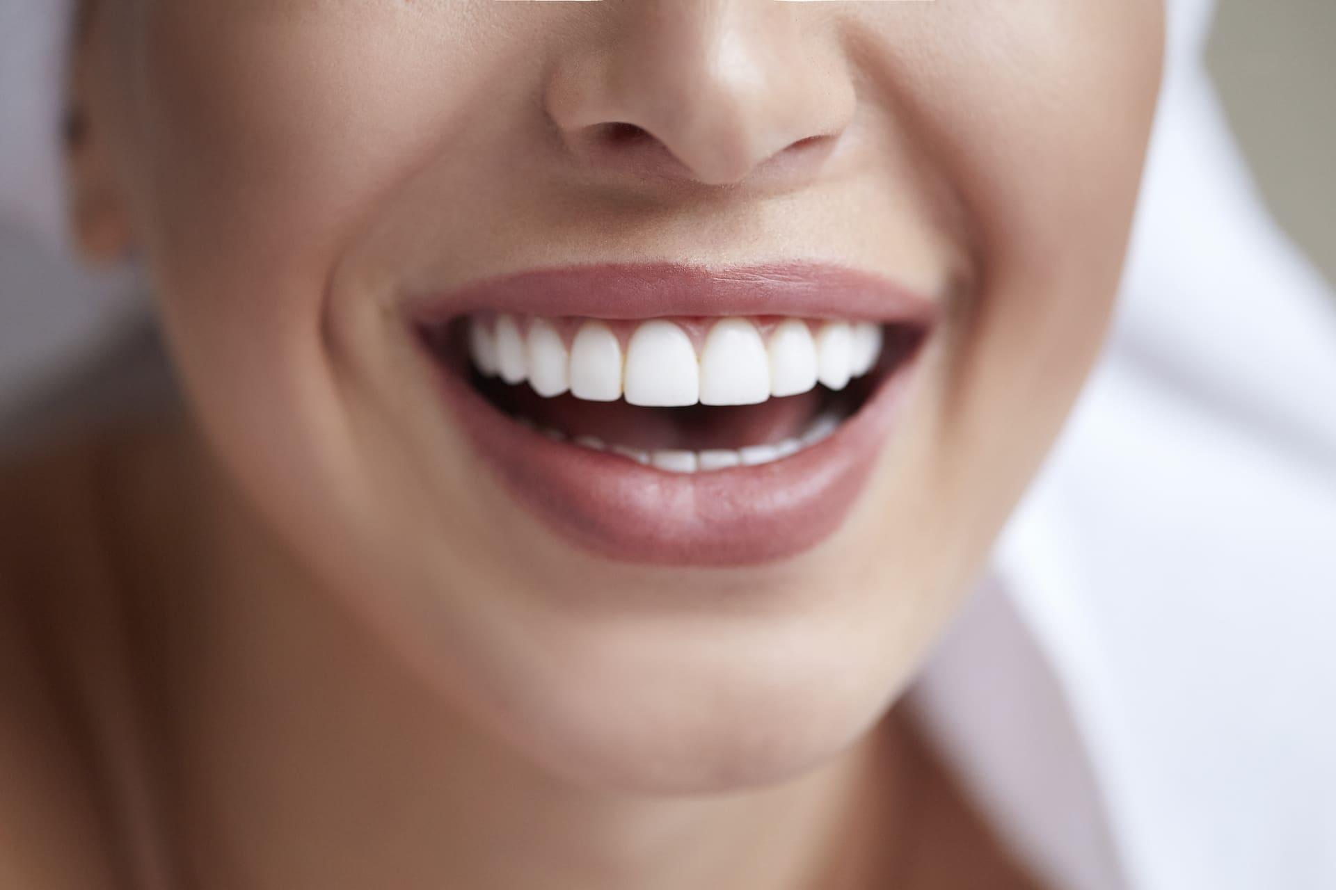 blanquejament dental